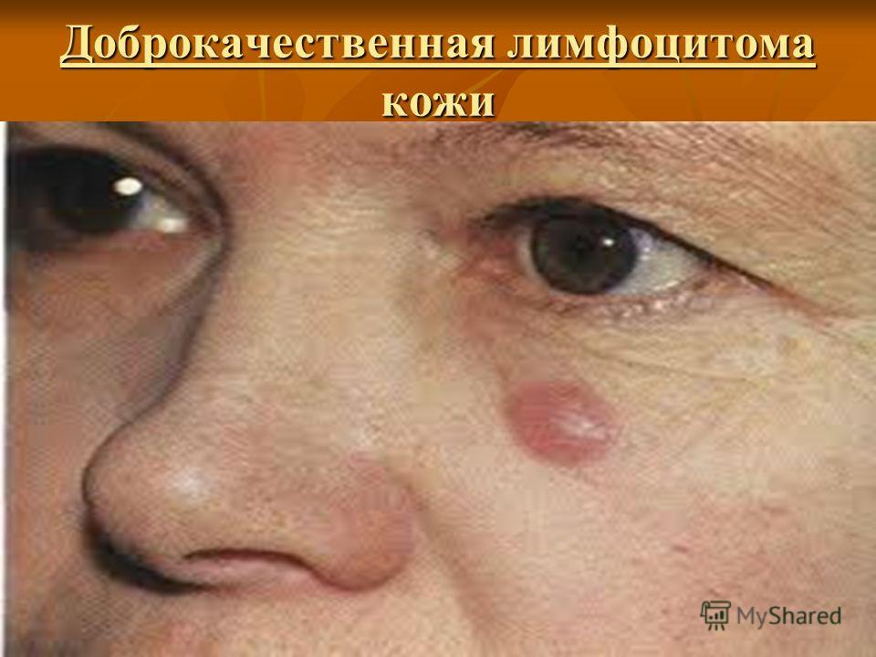 Доброкачественная лимфоцитома кожи