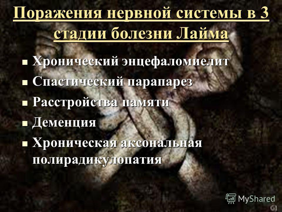 Поражения нервной системы в 3 стадии болезни Лайма Хронический энцефаломиелит Хронический энцефаломиелит Спастический парапарез Спастический парапарез Расстройства памяти Расстройства памяти Деменция Деменция Хроническая аксональная полирадикулопатия