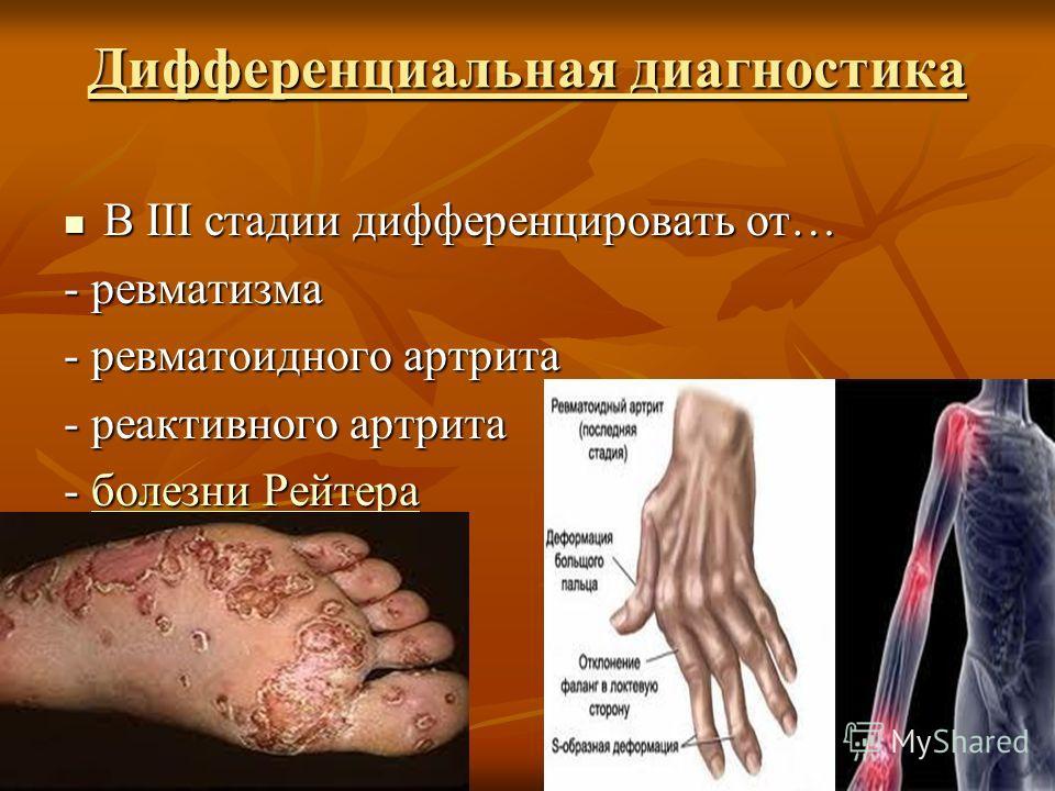 Дифференциальная диагностика В III стадии дифференцировать от… В III стадии дифференцировать от… - ревматизма - ревматоидного артрита - реактивного артрита - болезни Рейтера болезни Рейтераболезни Рейтера