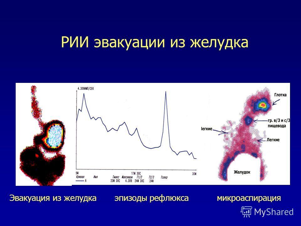 РИИ эвакуации из желудка Эвакуация из желудка эпизоды рефлюкса микроаспирация
