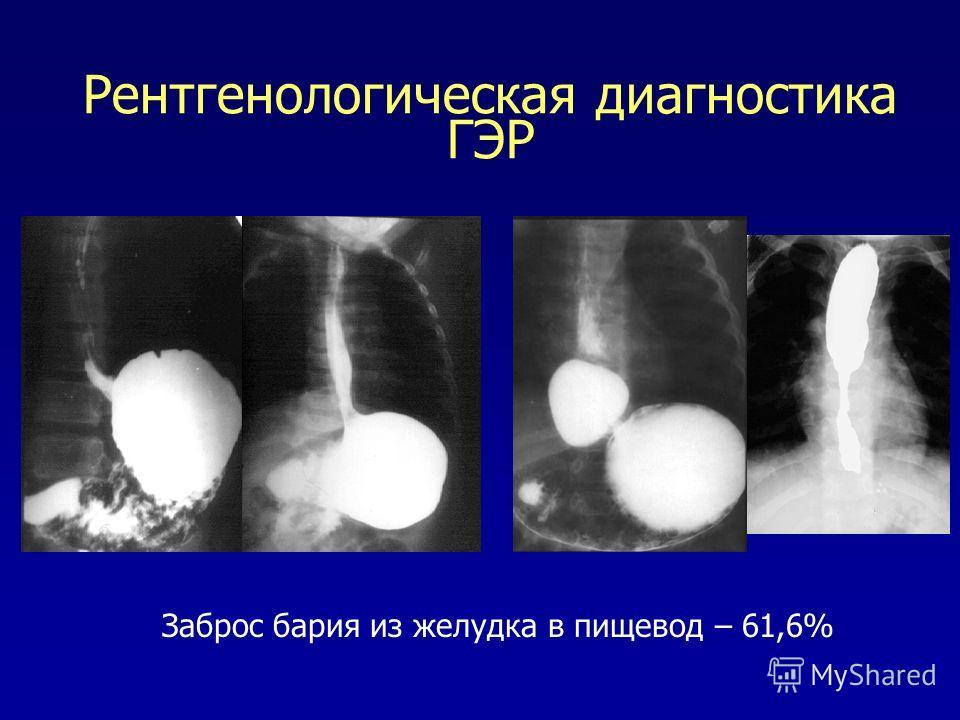 Рентгенологическая диагностика ГЭР Заброс бария из желудка в пищевод – 61,6%