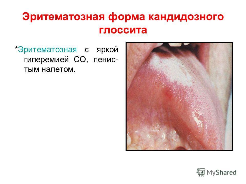 Эритематозная форма кандидозного глоссита *Эритематозная с яркой гиперемией СО, пенис- тым налетом.