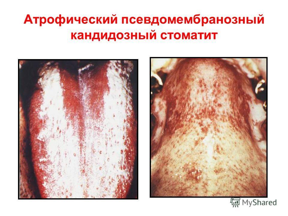 Атрофический псевдомембранозный кандидозный стоматит