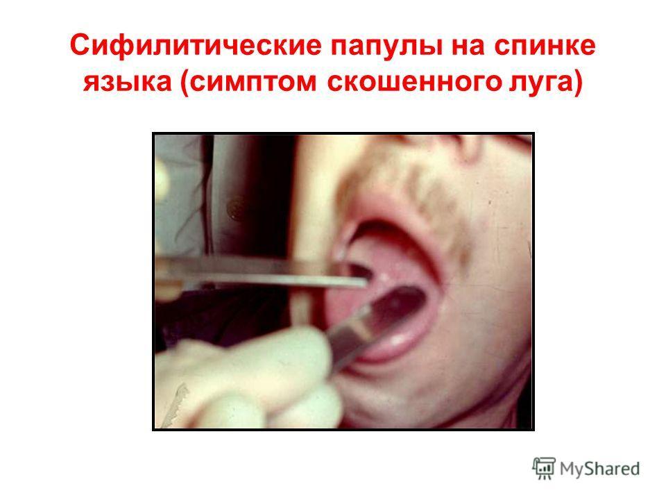 Сифилитические папулы на спинке языка (симптом скошенного луга)