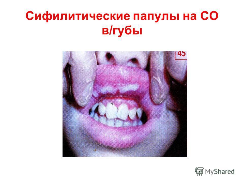Сифилитические папулы на СО в/губы