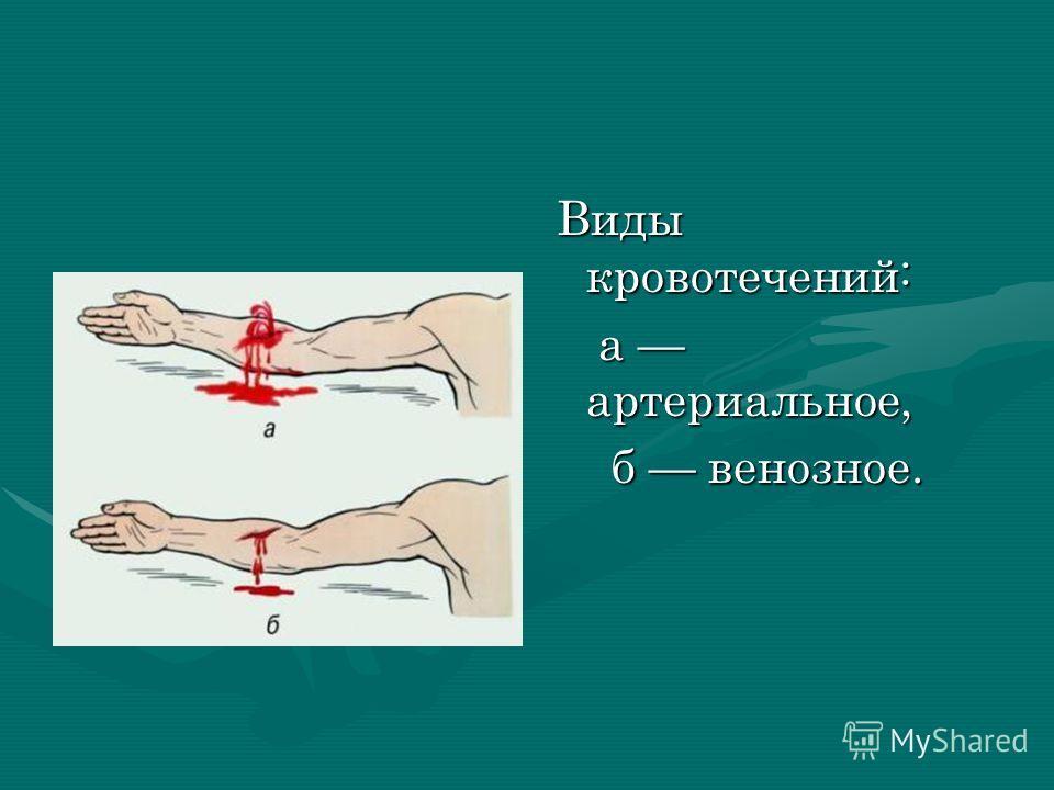 Виды кровотечений: а артериальное, б венозное.