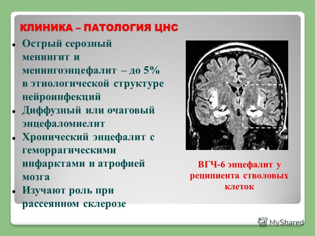 КЛИНИКА – ПАТОЛОГИЯ ЦНС Острый серозный менингит и менингоэнцефалит – до 5% в этиологической структуре нейроинфекций Диффузный или очаговый энцефаломиелит Хронический энцефалит с геморрагическими инфарктами и атрофией мозга Изучают роль при рассеянно