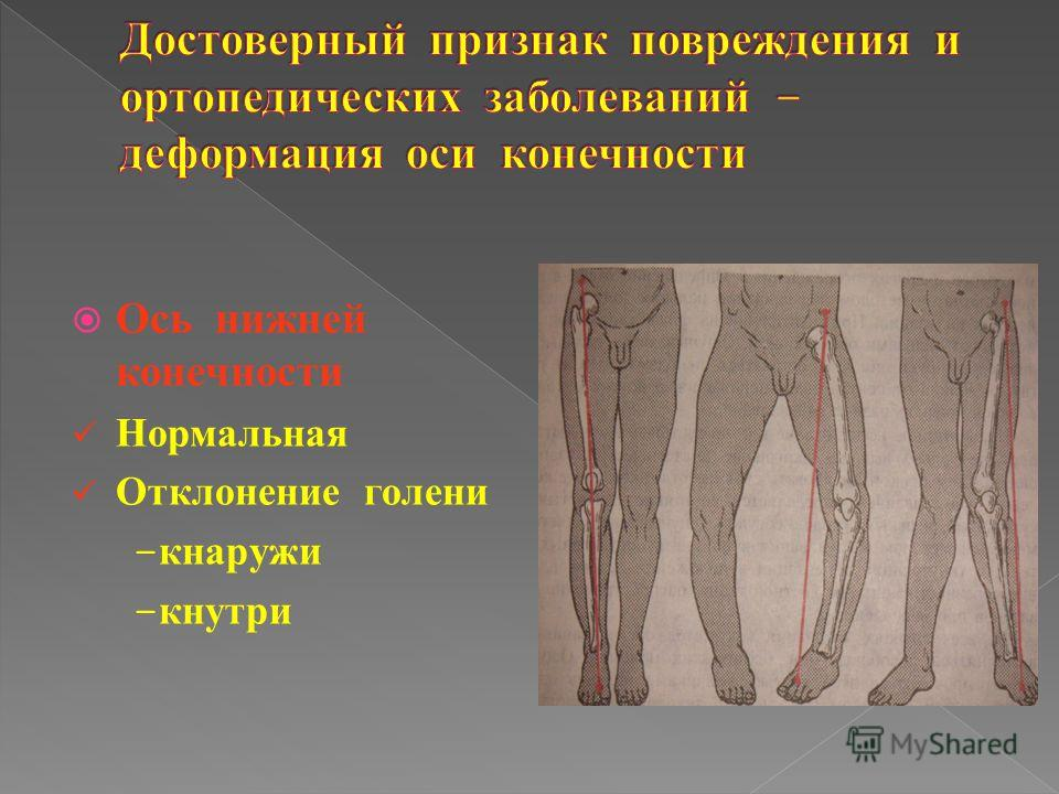 Ось нижней конечности Нормальная Отклонение голени - кнаружи - кнутри