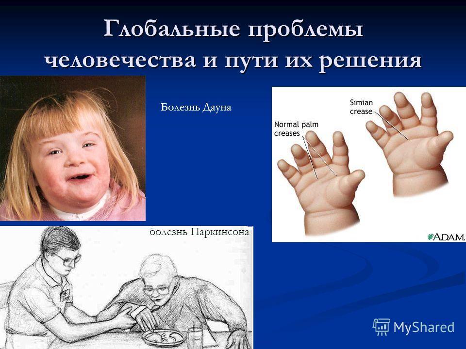 Глобальные проблемы человечества и пути их решения. болезнь Паркинсона Болезнь Дауна