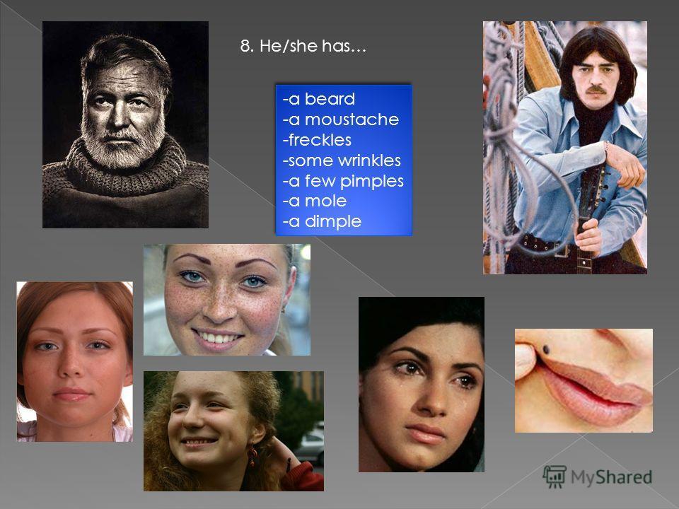 8. He/she has… -a beard -a moustache -freckles -some wrinkles -a few pimples -a mole -a dimple -a beard -a moustache -freckles -some wrinkles -a few pimples -a mole -a dimple