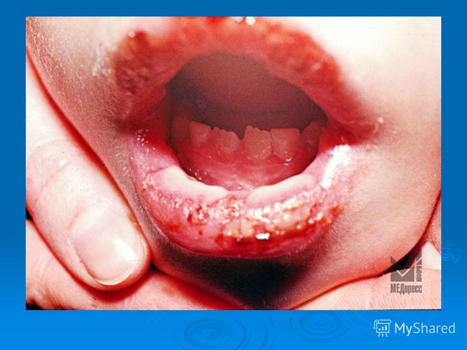 Головная боль при синусите симптомы