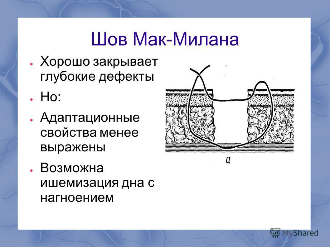 Шов Мак-Милана Хорошо закрывает глубокие дефекты Но: Адаптационные свойства менее выражены Возможна ишемизация дна с нагноением