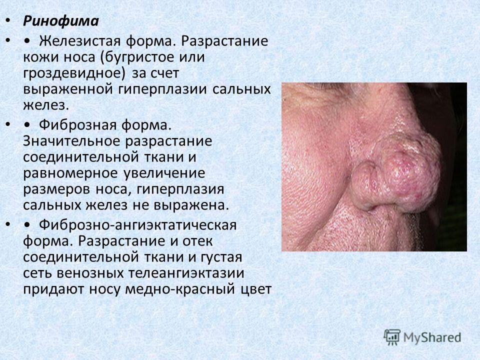 Ринофима Железистая форма. Разрастание кожи носа (бугристое или гроздевидное) за счет выраженной гиперплазии сальных желез. Фиброзная форма. Значительное разрастание соединительной ткани и равномерное увеличение размеров носа, гиперплазия сальных жел