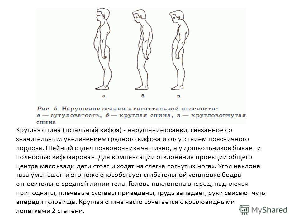 Сколиоз лечение корсет на спину