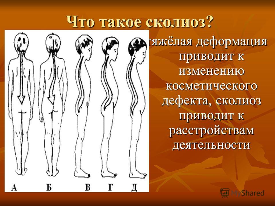 Что такое сколиоз? тяжёлая деформация приводит к изменению косметического дефекта, сколиоз приводит к расстройствам деятельности.