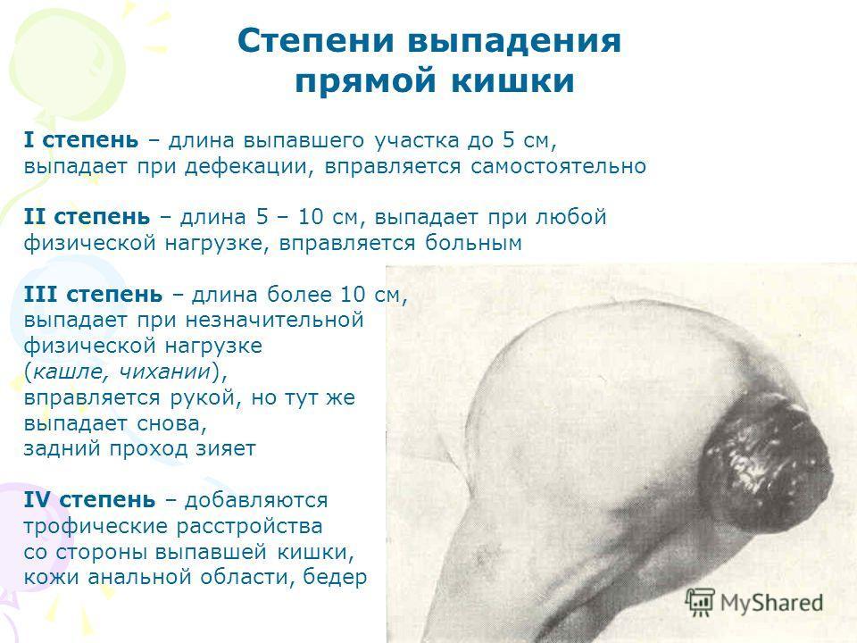 Степени выпадения прямой кишки I степень – длина выпавшего участка до 5 см, выпадает при дефекации, вправляется самостоятельно II степень – длина 5 – 10 см, выпадает при любой физической нагрузке, вправляется больным III степень – длина более 10 см,