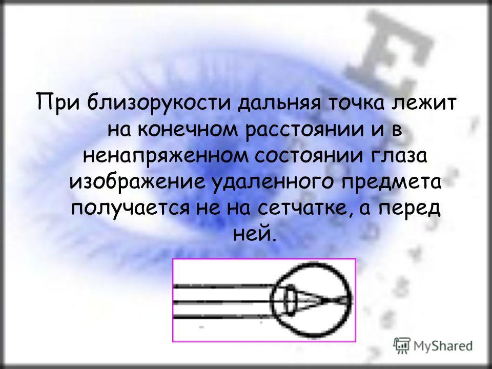 При близорукости дальняя точка лежит на конечном расстоянии и в ненапряженном состоянии глаза изображение удаленного предмета получается не на сетчатке, а перед ней.