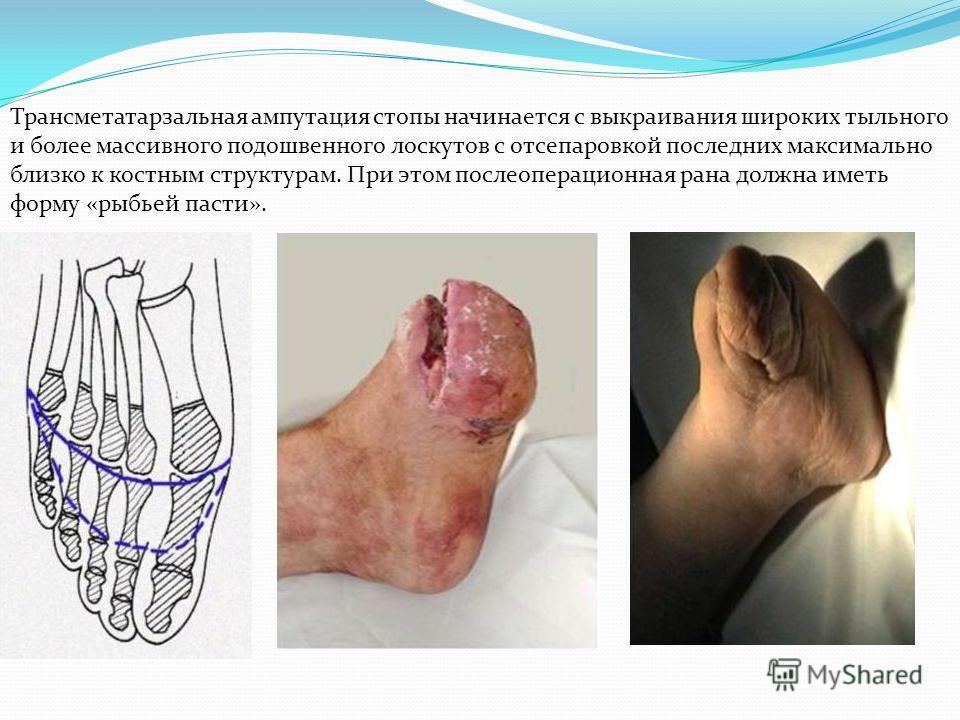 Трансметатарзальная ампутация стопы начинается с выкраивания широких тыльного и более массивного подошвенного лоскутов с отсепаровкой последних максимально близко к костным структурам. При этом послеоперационная рана должна иметь форму «рыбьей пасти»