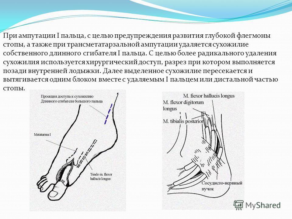При ампутации I пальца, с целью предупреждения развития глубокой флегмоны стопы, а также при трансметатарзальной ампутации удаляется сухожилие собственного длинного сгибателя I пальца. С целью более радикального удаления сухожилия используется хирург