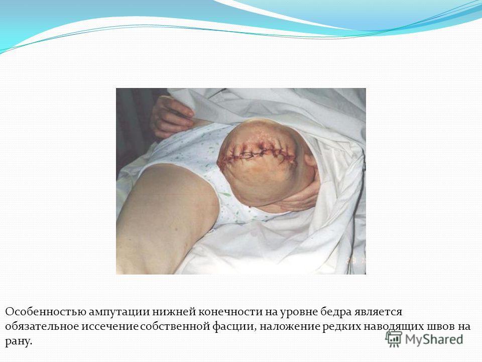Особенностью ампутации нижней конечности на уровне бедра является обязательное иссечение собственной фасции, наложение редких наводящих швов на рану.
