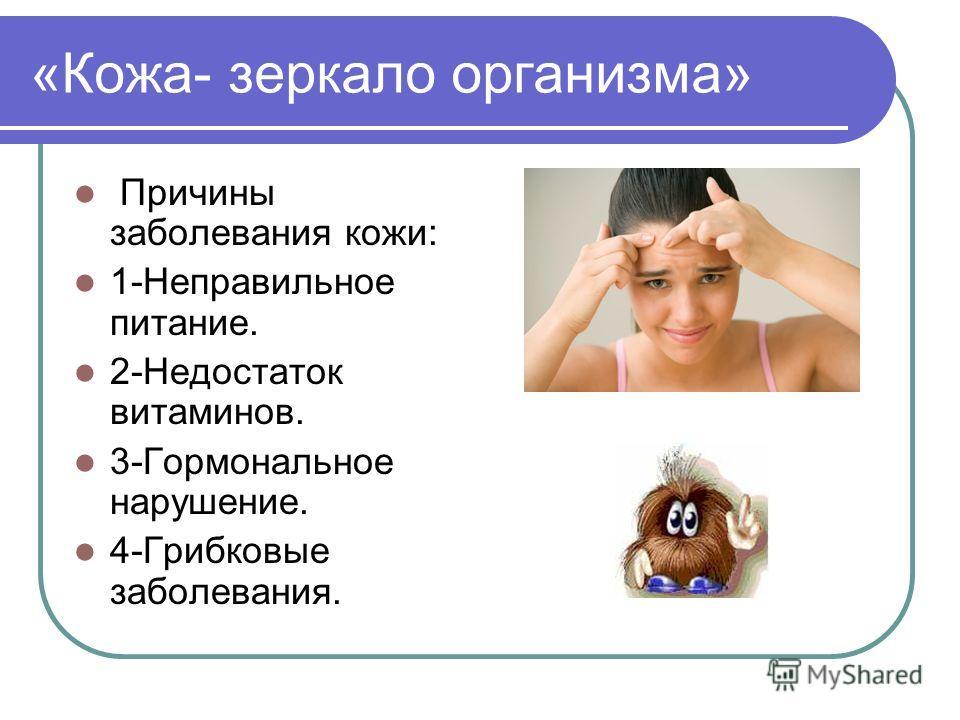 «Кожа- зеркало организма» Причины заболевания кожи: 1-Неправильное питание. 2-Недостаток витаминов. 3-Гормональное нарушение. 4-Грибковые заболевания.