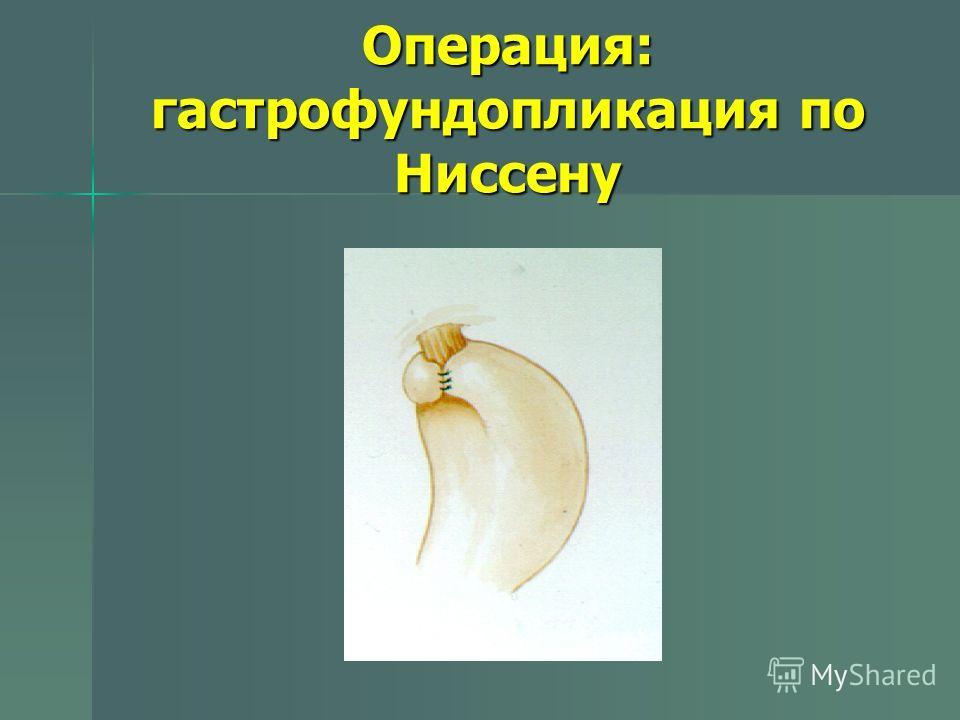 Операция: гастрофундопликация по Ниссену