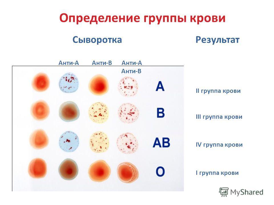 II группа крови III группа крови IV группа крови I группа крови Определение группы крови Сыворотка Результат Анти-А Анти-В Анти-А Анти-В