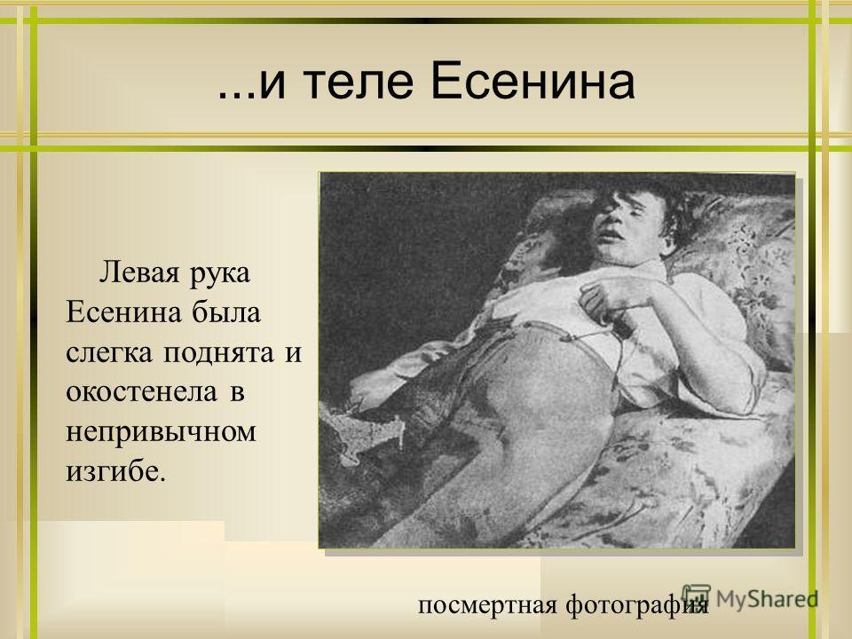 ...и теле Есенина посмертная фотография Левая рука Есенина была слегка поднята и окостенела в непривычном изгибе.