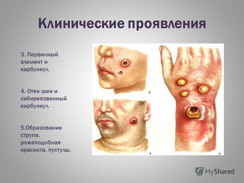 Клинические проявления 3. Первичный элемент и карбункул. 4. Отек шеи и сибиреязвенный карбункул. 5.Образование струпа, рожеподобная краснота, пустулы.