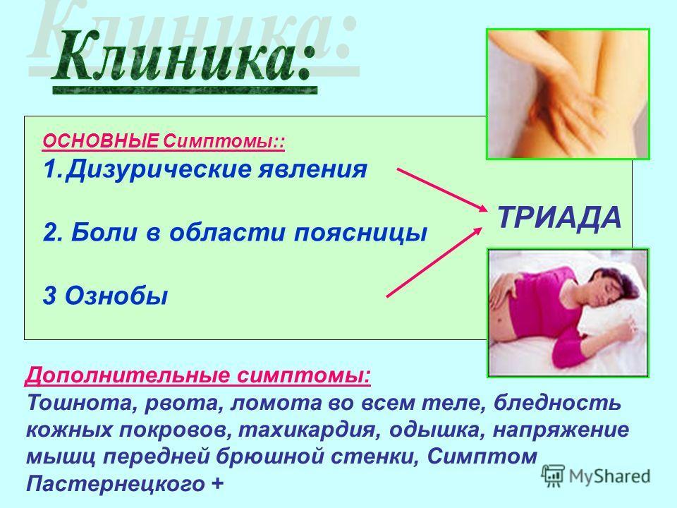 ОСНОВНЫЕ Симптомы:: 1.Дизурические явления 2. Боли в области поясницы 3 Ознобы ТРИАДА Дополнительные симптомы: Тошнота, рвота, ломота во всем теле, бледность кожных покровов, тахикардия, одышка, напряжение мышц передней брюшной стенки, Симптом Пастер