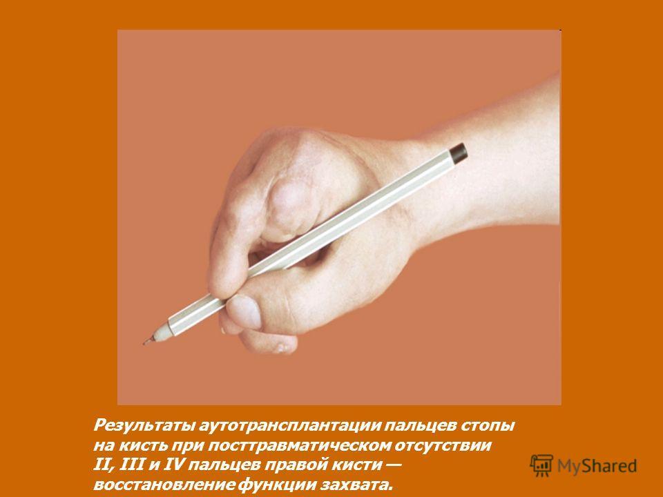 Результаты аутотрансплантации пальцев стопы на кисть при посттравматическом отсутствии II, III и IV пальцев правой кисти восстановление функции захвата.