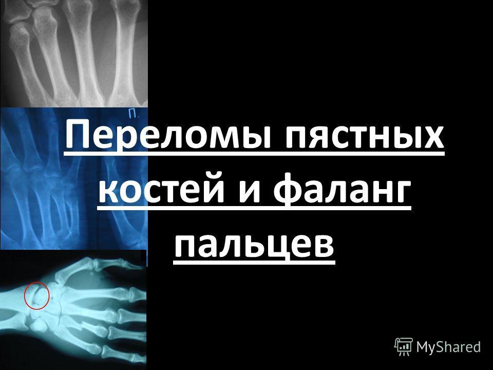Переломы пястных костей и фаланг пальцев