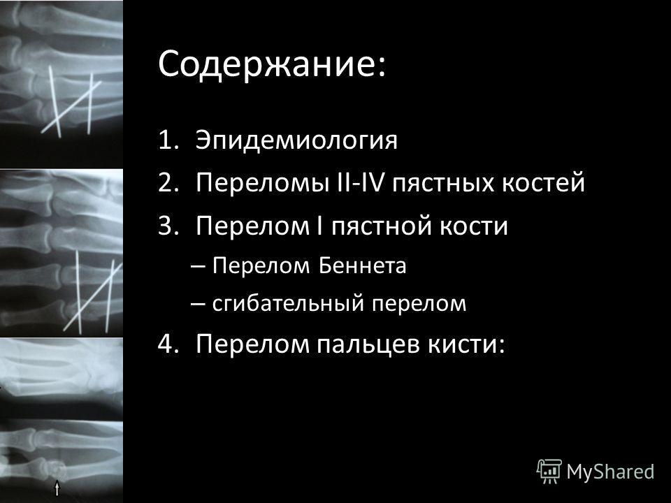 Содержание: 1.Эпидемиология 2.Переломы II-IV пястных костей 3.Перелом I пястной кости – Перелом Беннета – сгибательный перелом 4.Перелом пальцев кисти: