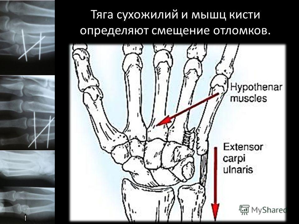 Тяга сухожилий и мышц кисти определяют смещение отломков.