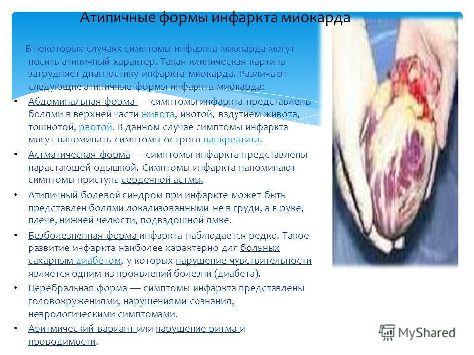 "Презентация на тему: ""Презентация на тему «Инфаркт миокарда ..."