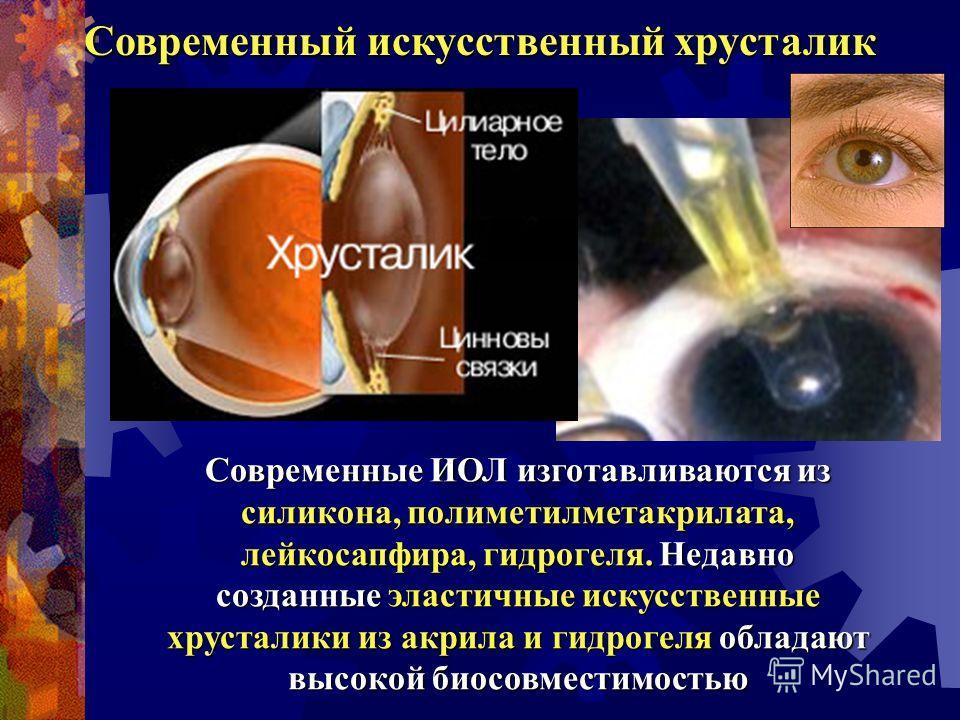 Современные ИОЛ изготавливаются из силикона, полиметилметакрилата, лейкосапфира, гидрогеля. Недавно созданные эластичные искусственные хрусталики из акрила и гидрогеля обладают высокой биосовместимостью Современный искусственный хрусталик