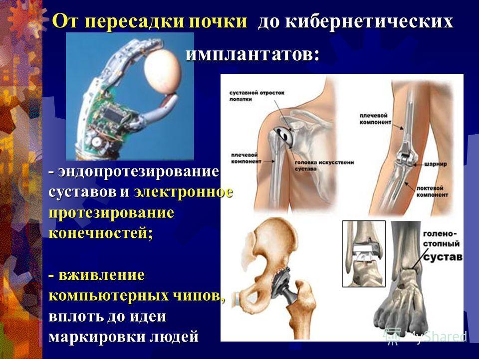 - эндопротезирование суставов и электронное протезирование конечностей; - вживление компьютерных чипов, вплоть до идеи маркировки людей От пересадки почки до кибернетических имплантатов: