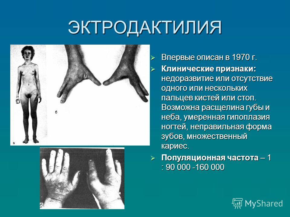 ЭКТРОДАКТИЛИЯ Впервые описан в 1970 г. Впервые описан в 1970 г. Клинические признаки: недоразвитие или отсутствие одного или нескольких пальцев кистей или стоп. Возможна расщелина губы и неба, умеренная гипоплазия ногтей, неправильная форма зубов, мн