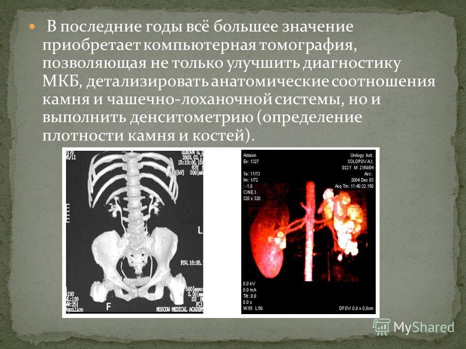 В последние годы всё большее значение приобретает компьютерная томография, позволяющая не только улучшить диагностику МКБ, детализировать анатомические соотношения камня и чашечно-лоханочной системы, но и выполнить денситометрию (определение плотност