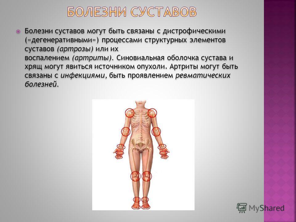 Болезни суставов могут быть связаны с дистрофическими («дегенеративными») процессами структурных элементов суставов (артрозы) или их воспалением (артриты). Синовиальная оболочка сустава и хрящ могут явиться источником опухоли. Артриты могут быть связ