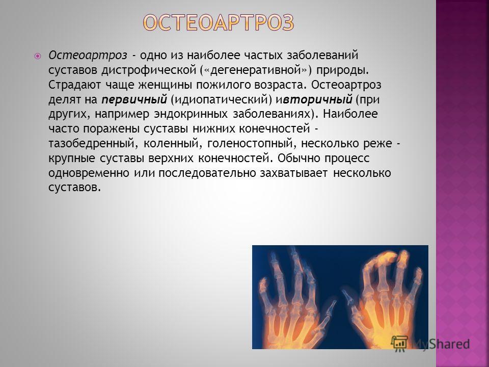Остеоартроз - одно из наиболее частых заболеваний суставов дистрофической («дегенеративной») природы. Страдают чаще женщины пожилого возраста. Остеоартроз делят на первичный (идиопатический) ивторичный (при других, например эндокринных заболеваниях).