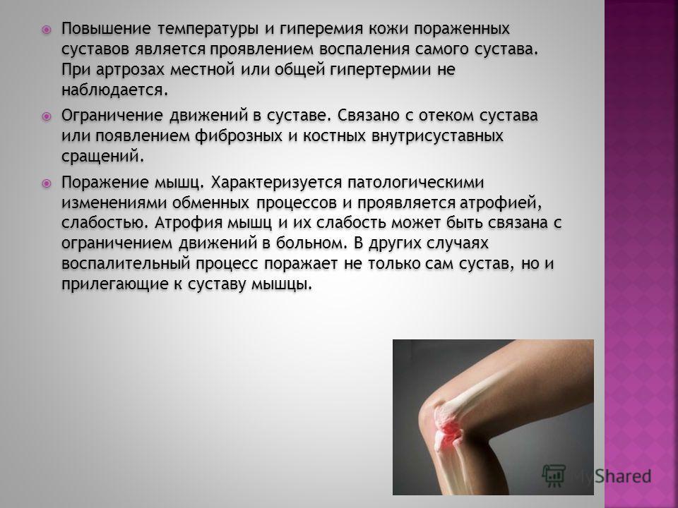 Повышение температуры и гиперемия кожи пораженных суставов является проявлением воспаления самого сустава. При артрозах местной или общей гипертермии не наблюдается. Ограничение движений в суставе. Связано с отеком сустава или появлением фиброзных и