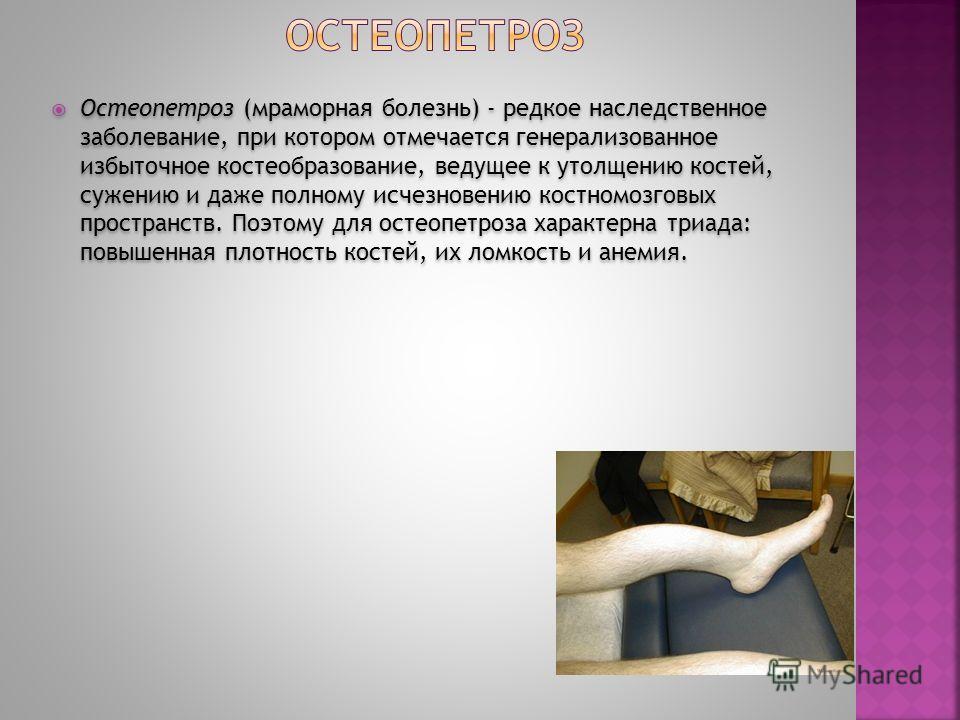 Остеопетроз (мраморная болезнь) - редкое наследственное заболевание, при котором отмечается генерализованное избыточное костеобразование, ведущее к утолщению костей, сужению и даже полному исчезновению костномозговых пространств. Поэтому для остеопет