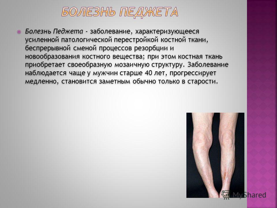 Болезнь Педжета - заболевание, характеризующееся усиленной патологической перестройкой костной ткани, беспрерывной сменой процессов резорбции и новообразования костного вещества; при этом костная ткань приобретает своеобразную мозаичную структуру. За