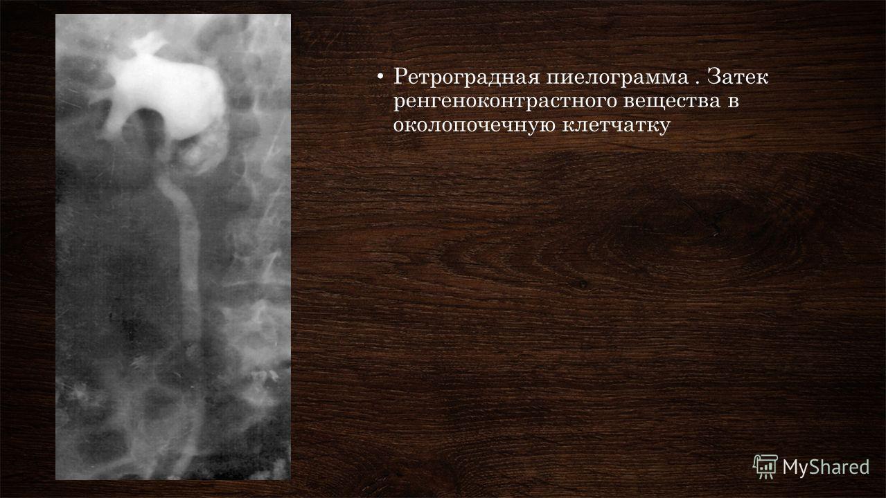Ретроградная пиелограмма. Затек ренгеноконтрастного вещества в околопочечную клетчатку
