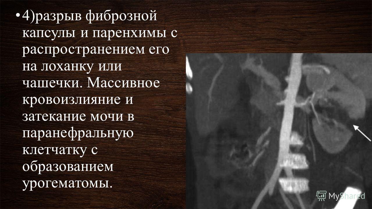 4)разрыв фиброзной капсулы и паренхимы с распространением его на лоханку или чашечки. Массивное кровоизлияние и затекание мочи в паранефральную клетчатку с образованием урогематомы.