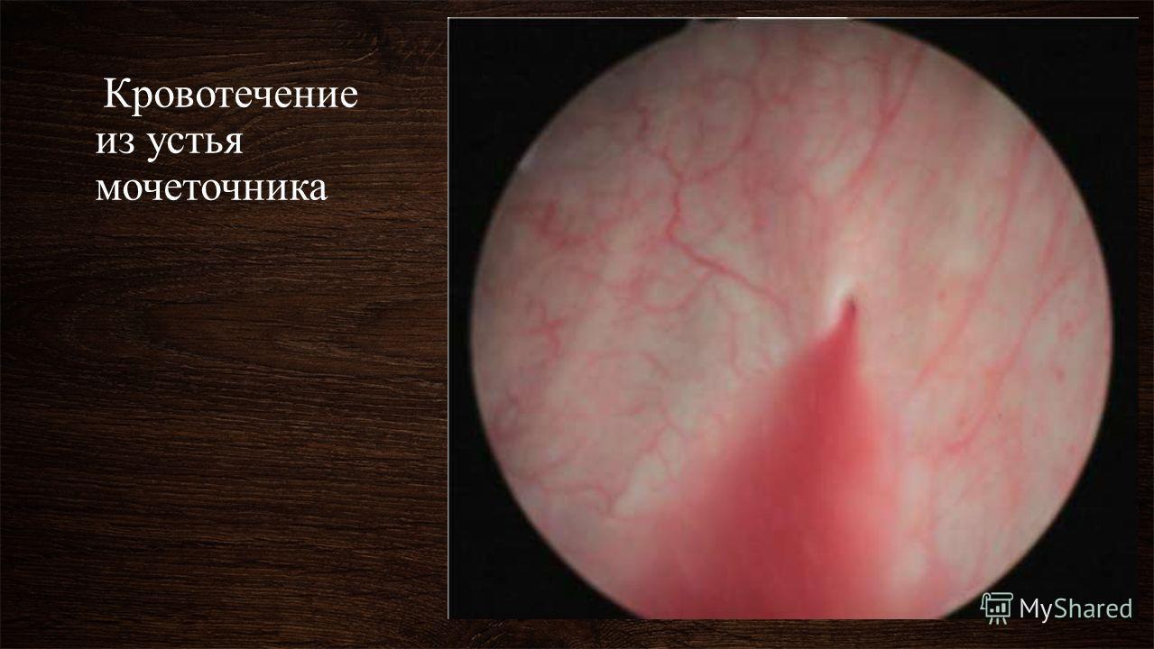 Кровотечение из устья мочеточника