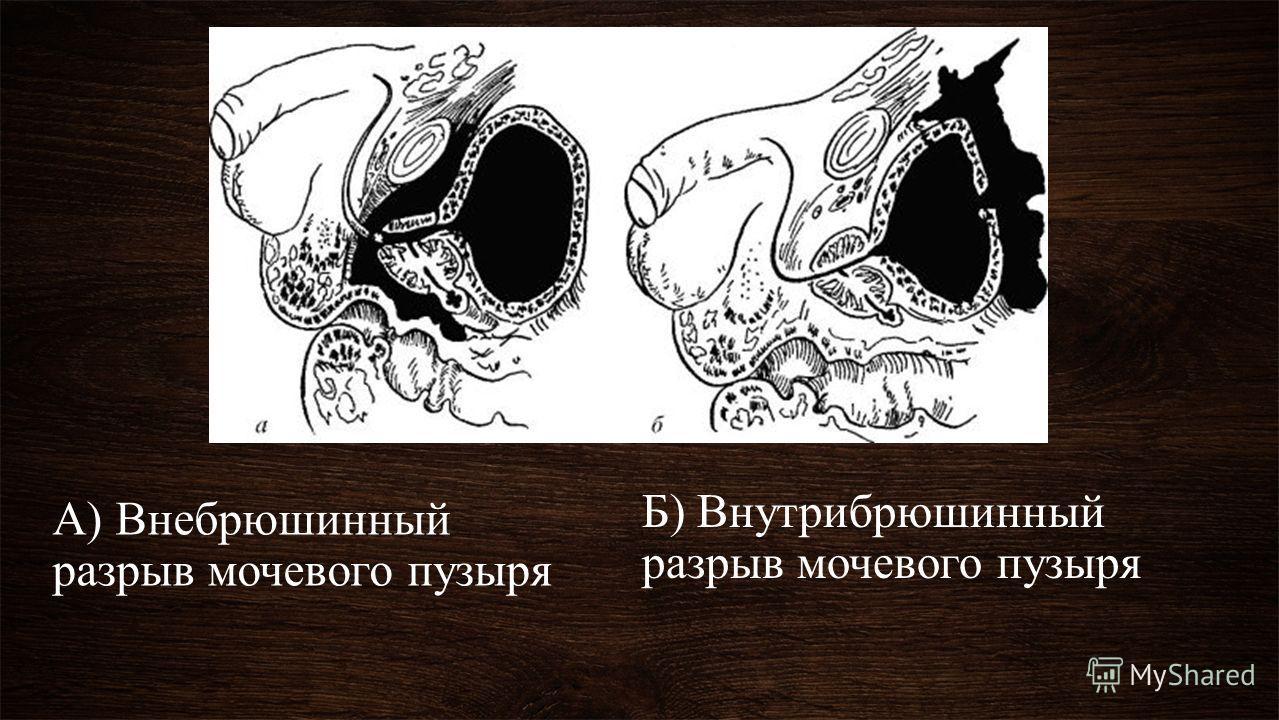 А) Внебрюшинный разрыв мочевого пузыря Б) Внутрибрюшинный разрыв мочевого пузыря