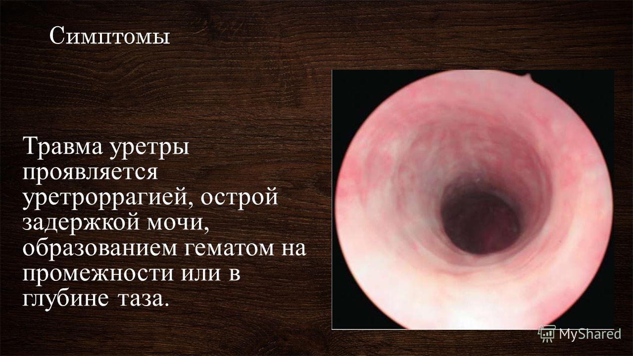 Симптомы Травма уретры проявляется уретроррагией, острой задержкой мочи, образованием гематом на промежности или в глубине таза.