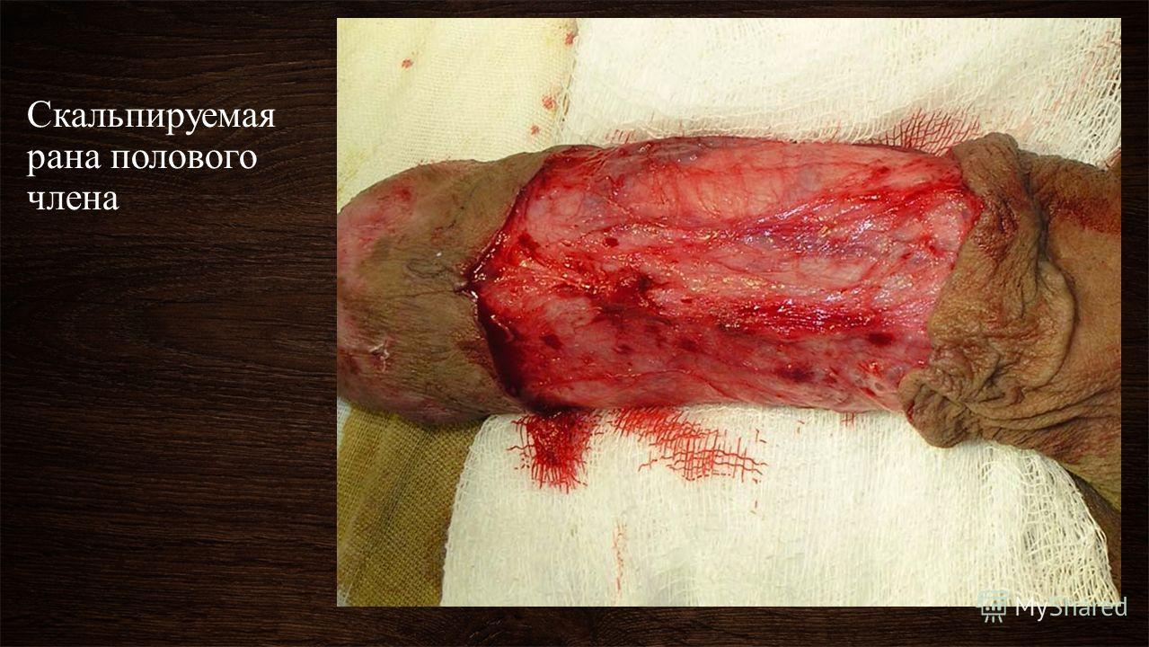 Скальпируемая рана полового члена